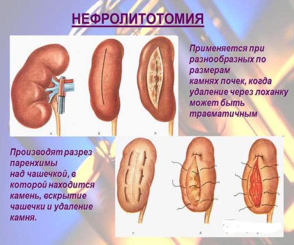 Percutaneous Nephrolithotripsy  YouTube